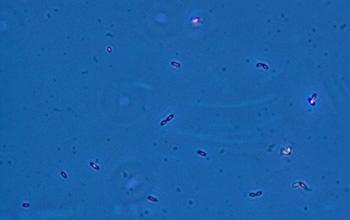 Эти бактерии очищают радиоактивные отходы