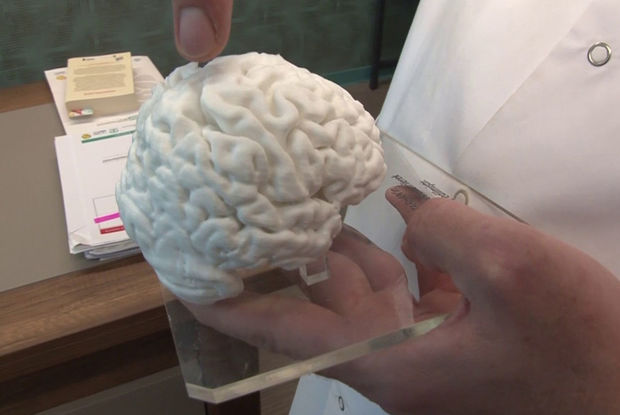 3D printerlə insan beyninin nüsxəsi hazırlanıb